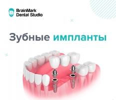 Акция на установку зубных имплантов в клиниках BrainMark Dental Studio